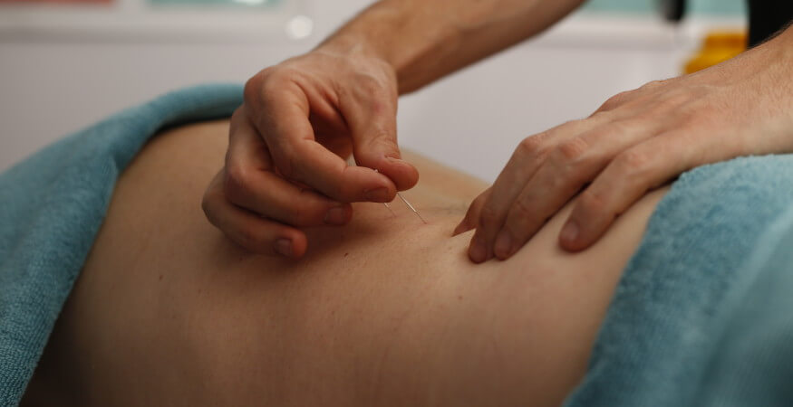 Dry Needling Treatment